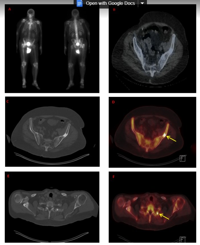 PET/CT Imaging Phenotype Tied With Survival in mCRPC