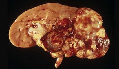 Urothelial Cell Carcinoma Linked to High Albumin Excretion