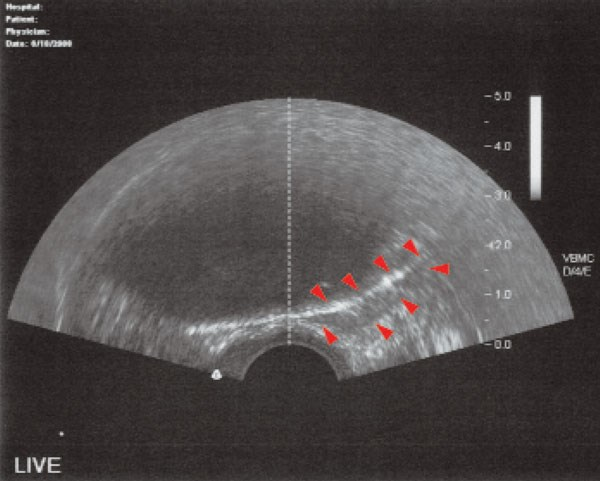 Transverse ultrasound image showing ice ball encompassing most of the prostate.