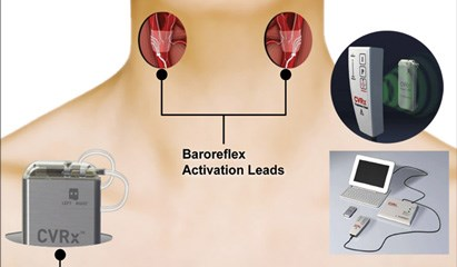 An investigational implantable device activates baroreceptors of the carotid sinus.