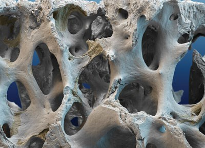 Few studies have looked at osteoporosis therapies in patients with CKD stages 4-5