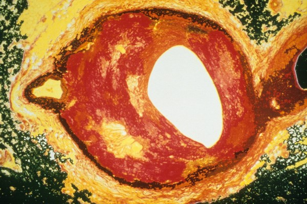 Vitamin D has indirectly been linked to the development of atherosclerosis (shown here).