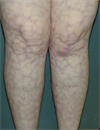 66-Year-Old Woman with Acute-on-Chronic Renal Failure and Skin Rash