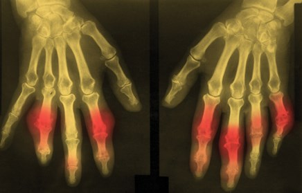 Individuals with first-degree relatives with gout are twice as likely to experienced gout.