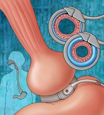 Bariatric Surgery Improves Urinary Incontinence
