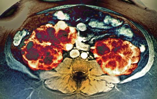 Total Kidney Volume in ADPKD Predicts CKD Progression