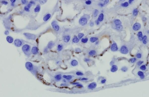TSC-Related Pediatric Renal Tumors Respond to Everolimus