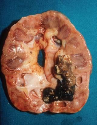 Οι ερευνητές διαπίστωσαν υψηλότερη συχνότητα εμφάνισης κλινικά διαγνωσμένων ουρικών πέτρες μεταξύ των ανδρών που έλαβαν θεραπεία αντικατάστασης τεστοστερόνης (TRT) έναντι συγκριτικών ελέγχων όχι σε TRT.