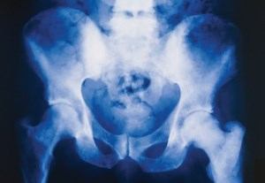 Danish study reveals a 10% prevalence of osteoporosis among men due to start ADT.
