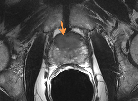 MRI can identify men more likely to harbor intermediate- and high-risk tumors.
