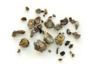 kidney stone formation may differ in ms patients renal and urology