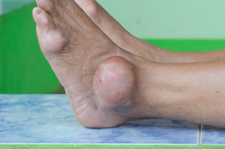 Each 5-unit increment in BMI is associated with a 55% increased relative risk of gout.