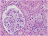 Assessing Prognosis in a Common Type of Glomerulonephritis?