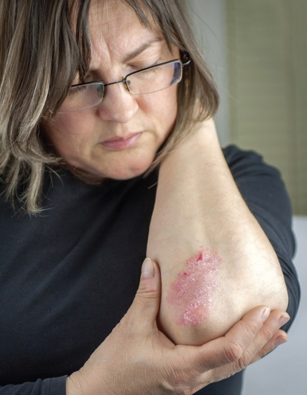 Women who had hypertension for at least 6 years had a 27% increased risk of the skin disease.