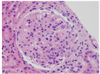 A Young Woman with Diffuse Proliferative Glomerulonephritis