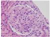 A Young Woman with Diffuse Proliferative Glomerulonephritis