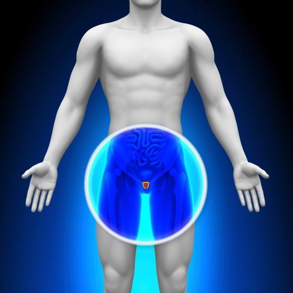 Men who underwent whole-gland cryoablation had an estimated 5-year biochemical progression-free survival rate of 59.1%.