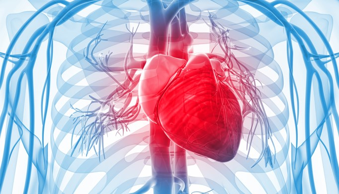 Heart Failure Risk Increases With First Heart Attack