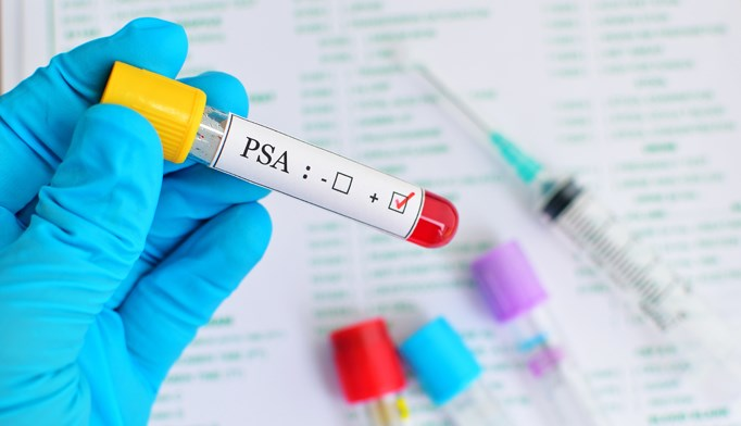 Metastasis and death are more likely to occur among patients with relatively high PSA levels at diagnosis of nmCRPC and rising PSA levels during follow-up.