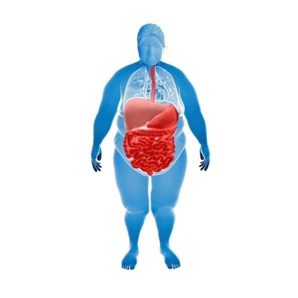 Morbid Obesity Ups Viral Infection Risk After a Kidney Transplant