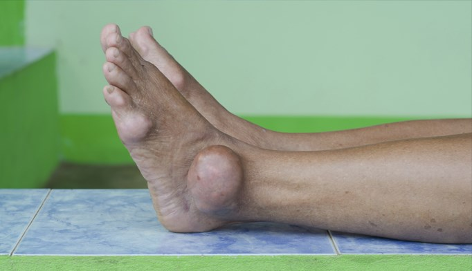 Gout is uncontrolled in the majority of individuals with the condition, data show.