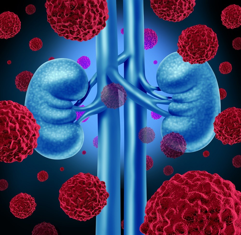 Renal-Cell Cancer Disease-Free Survival Up With Sunitinib