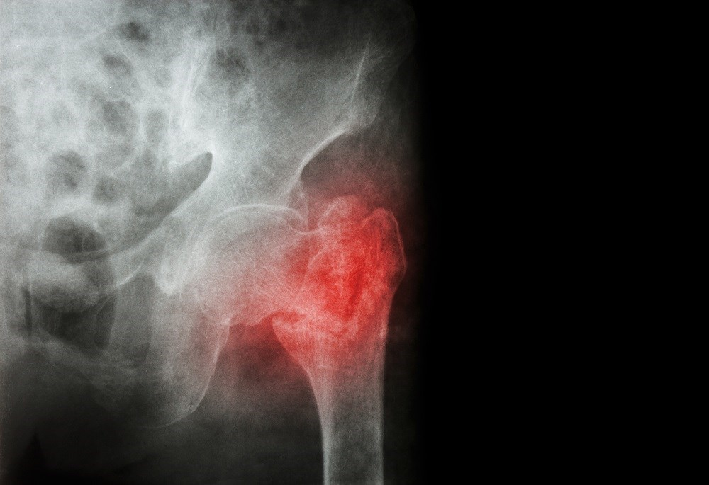 The multivariable-adjusted relative risk of hip fracture was 1.38 in women with history of gout.