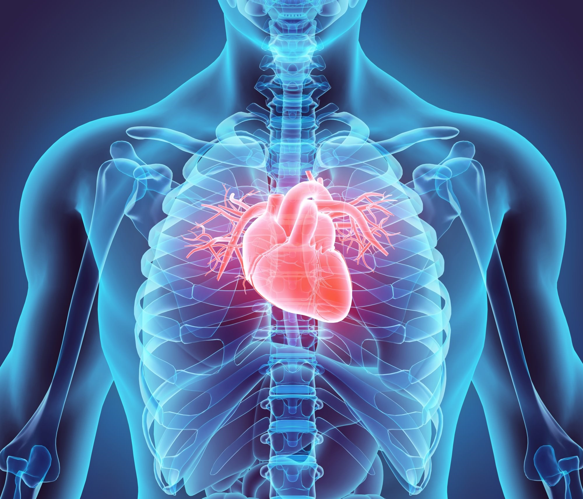 Skin Sodium Linked to LVH in CKD Patients