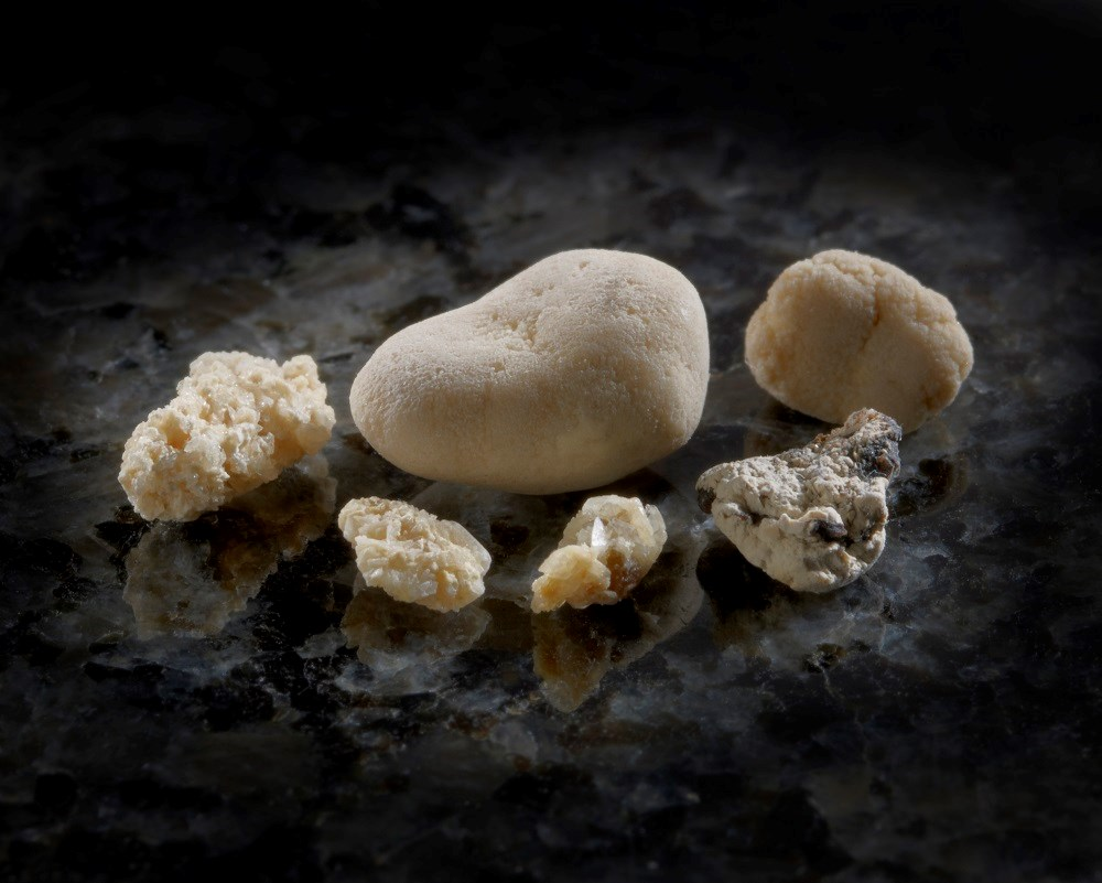 Kidney Stone Diagnoses Up From 1984 to 2012
