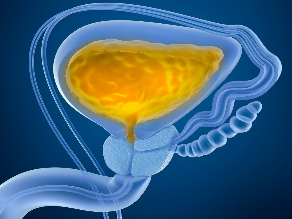 Overactive Bladder Linked to Prostate Cancer ADT