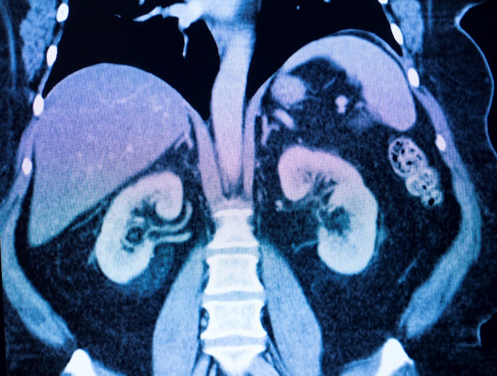 Kidney Donor Candidates May Have Various Incidentally Detected Lesions