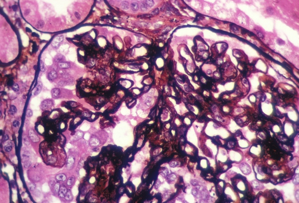 Voclosporin Shows Promise as Lupus Nephritis Treatment