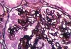 Voclosporin Shows Promise as Lupus Nephritis Treatment