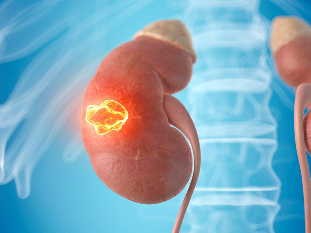 ASTRO: Stereotactic Ablative RT OK for RCC in Solitary Kidneys