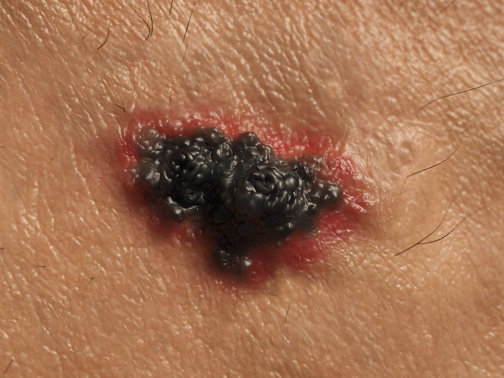 The findings showed that only 29.1% of the skin cancers started in moles patients already had.