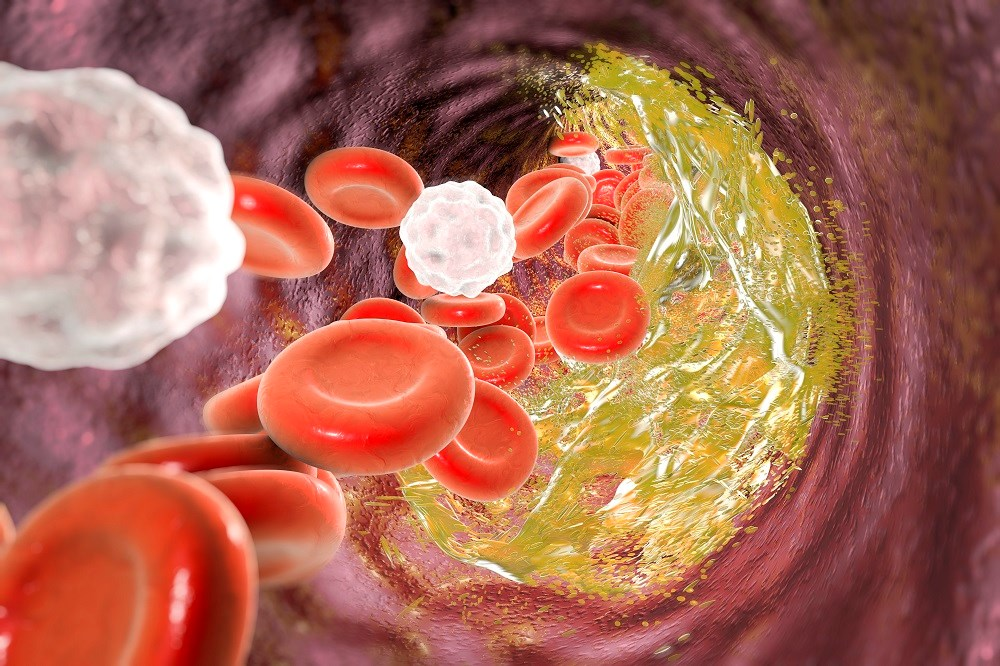 In a study, AKI sufferers had an increased rate of venous thromboembolism whether they receive heparin prophylaxis or not.