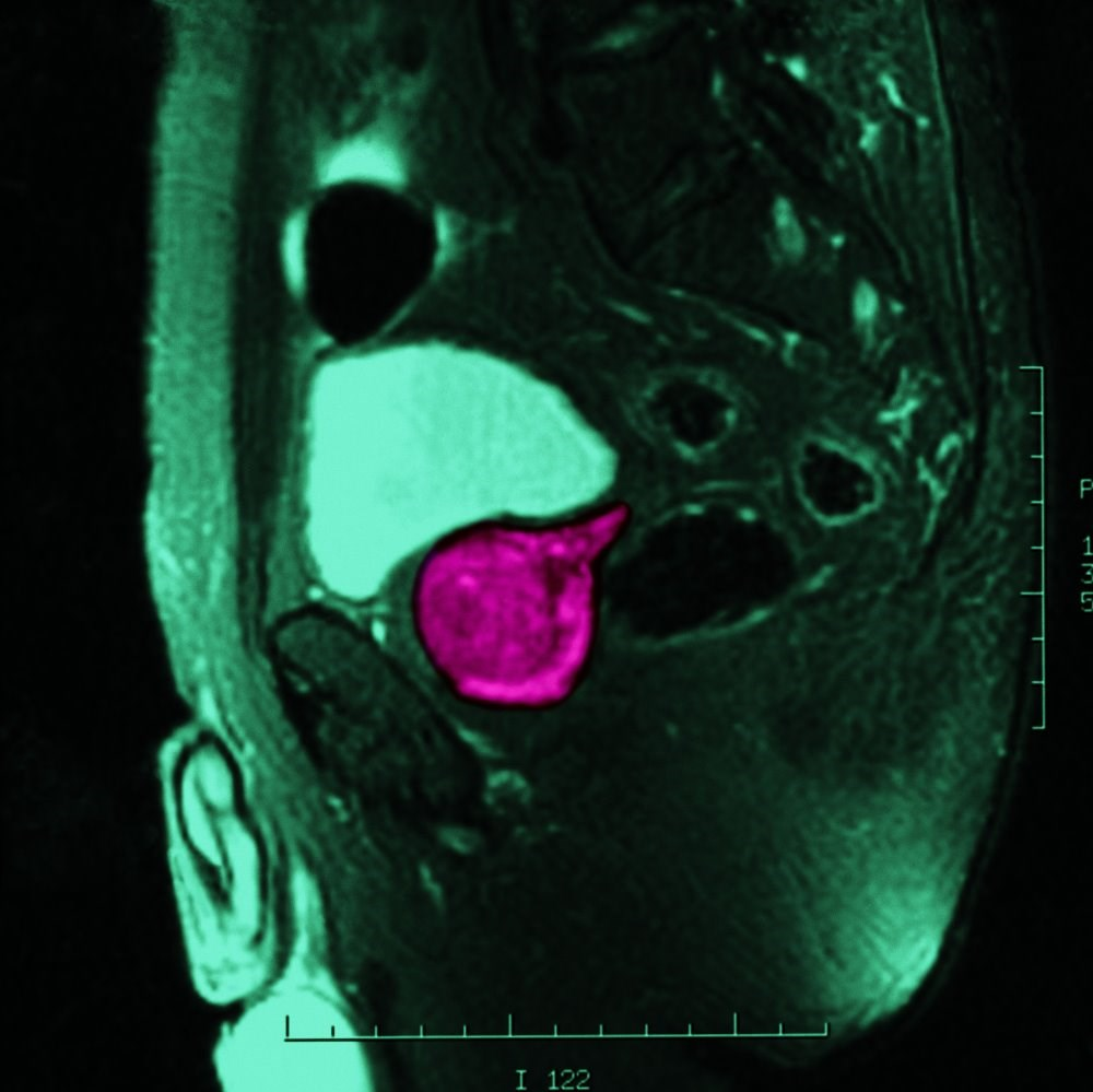 MRI Scans Can Avert Many Prostate Biopsies