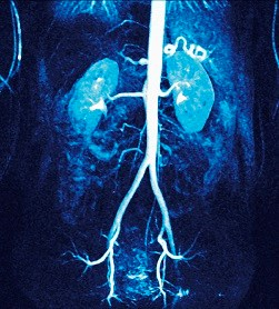 Outpatient AKI Is a Risk Factor for Death, Adverse Renal Outcomes