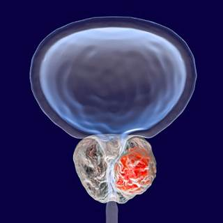 Significant improvements in symptoms, peak flow rate, and post-void residual volume observed in men with prostate volumes of 80 to 150 cc.