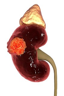 Certain Renal Cancer Subtypes Linked to Obesity