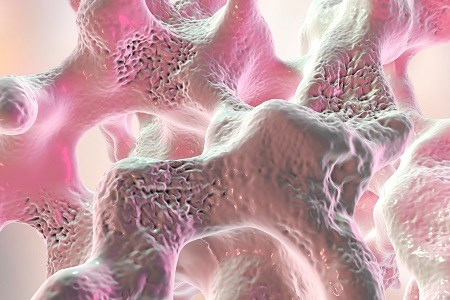 Parathyroidectomy Found to Up Bone Density in SHPT