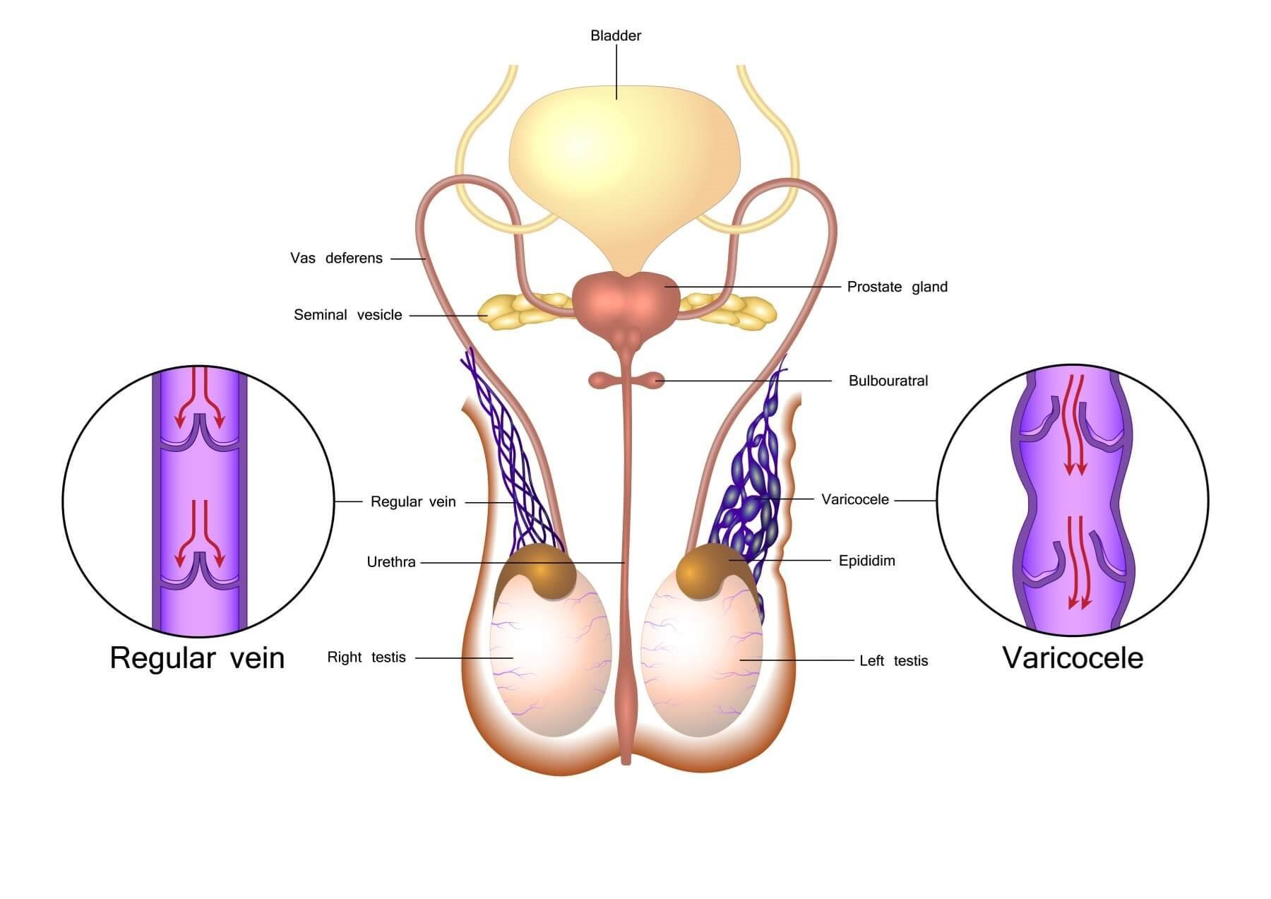 Hypogonadism Predicts Varicocele Repair