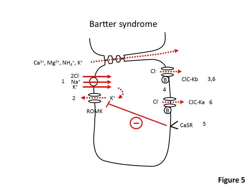 Acidbase Disorders Metabolic Alkalosis Renal And Urology News